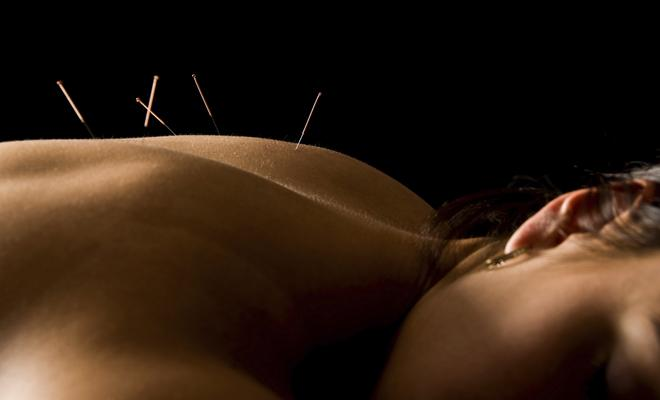 acupuncture-92275389